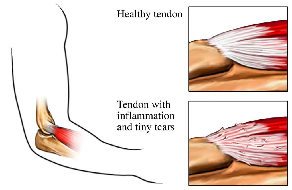 tendon-with-tears